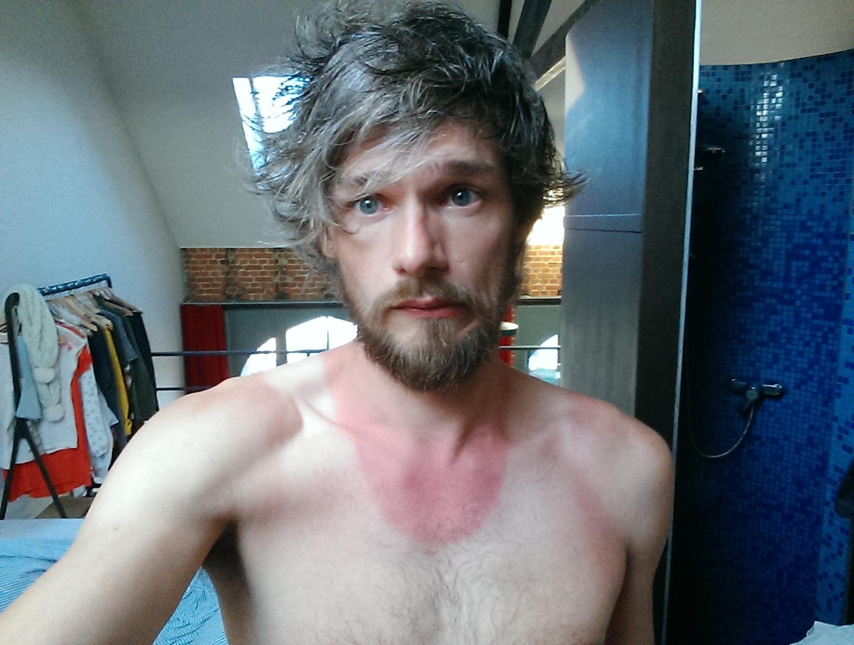 Verbrande hals na hardlopen